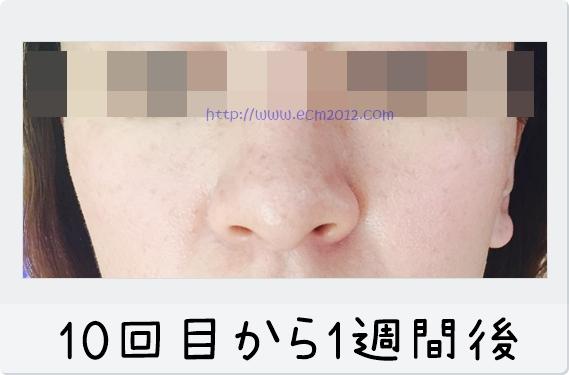 f:id:hiyake:20170310131500j:plain
