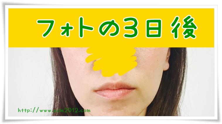 f:id:hiyake:20170606085736j:plain