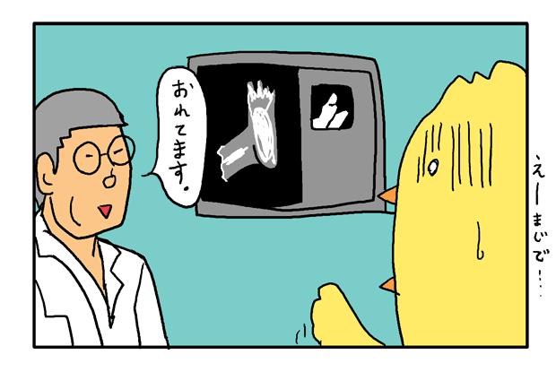 足の指 骨折 ヒビ