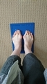 わたしの足、外反母趾