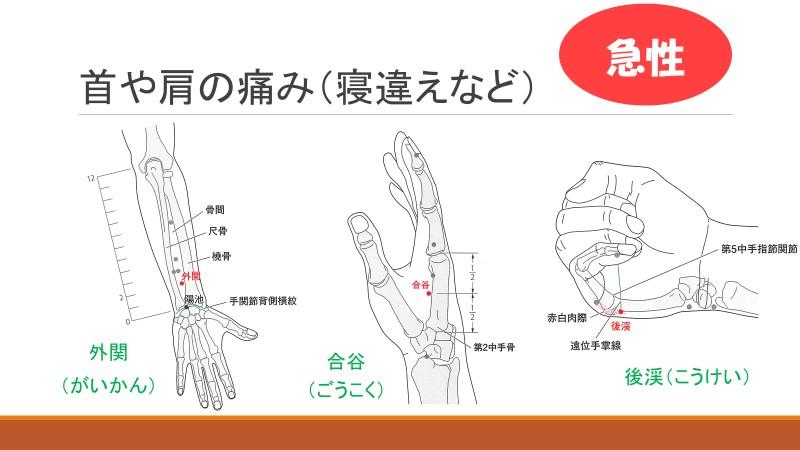 f:id:hokkaido_shinkyu:20200701181249j:plain