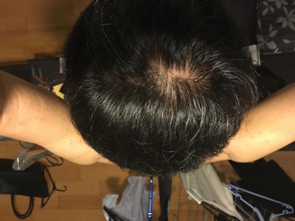 f:id:hokunori1:20160925040404j:plain