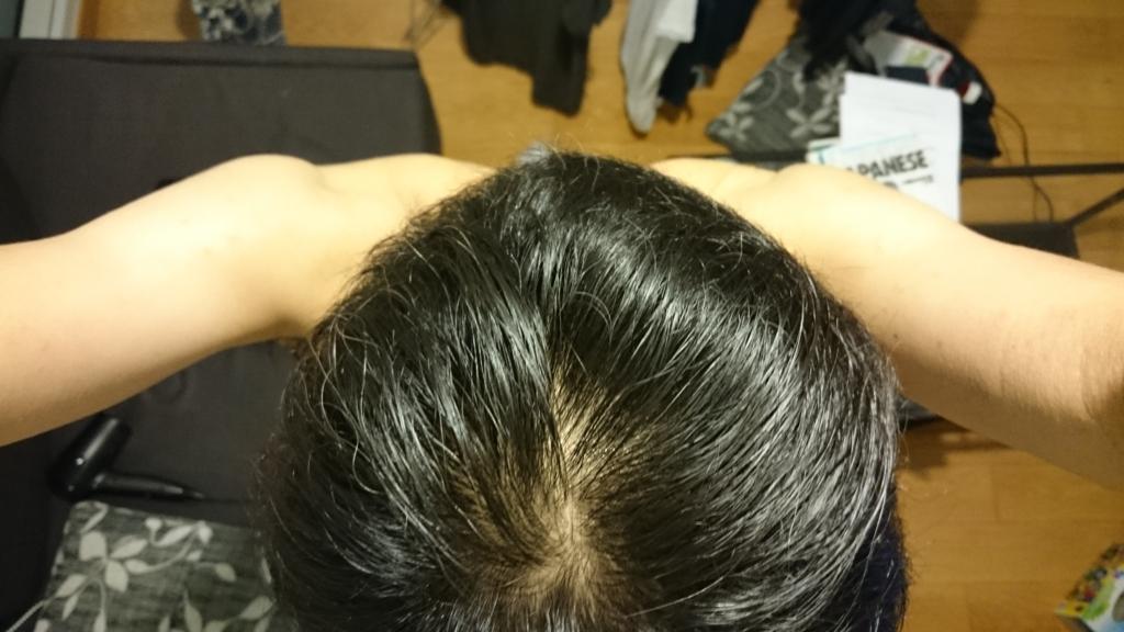 f:id:hokunori1:20161024012149j:plain