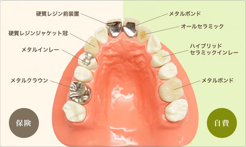 f:id:honey-dental:20200322213244j:plain