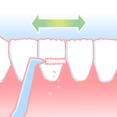f:id:honey-dental:20200407224200p:plain