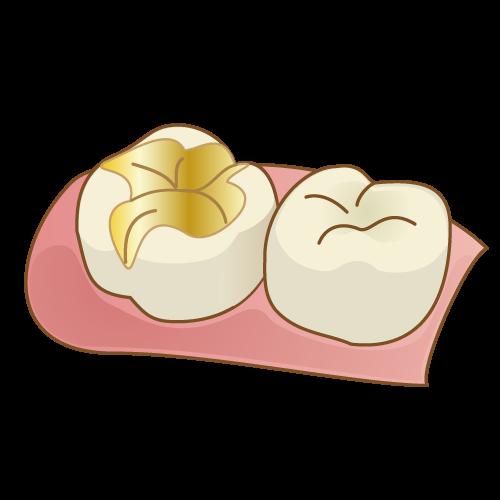 f:id:honey-dental:20200412103456p:plain