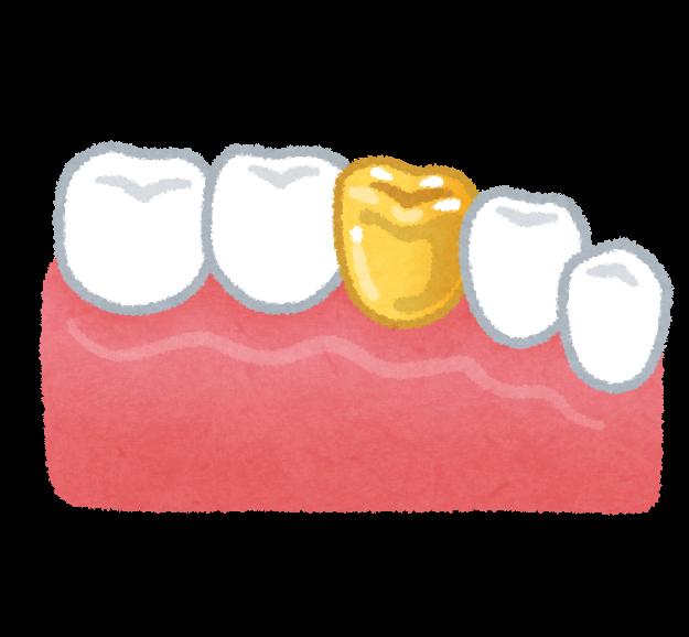 f:id:honey-dental:20200412103504p:plain