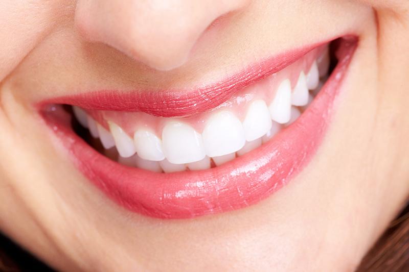 f:id:honey-dental:20200511221253j:plain