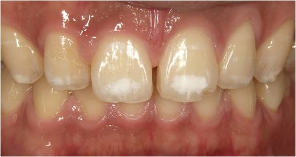 f:id:honey-dental:20200511225550j:plain