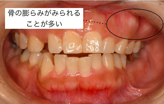 f:id:honey-dental:20200803003737p:plain