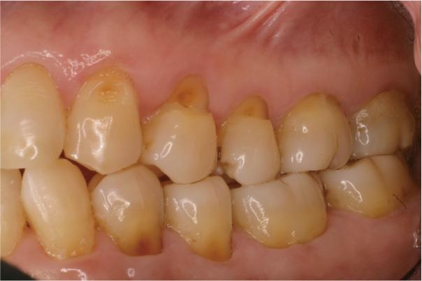 f:id:honey-dental:20210114112014j:plain