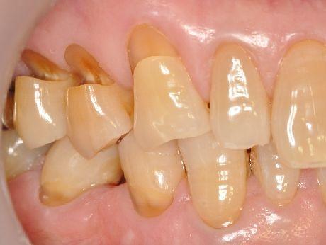 f:id:honey-dental:20210114112022j:plain