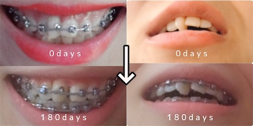 歯列矯正6か月目