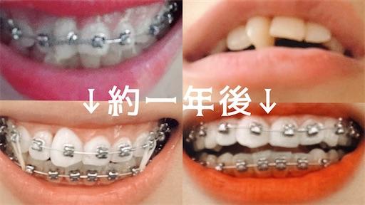 歯列矯正1年後