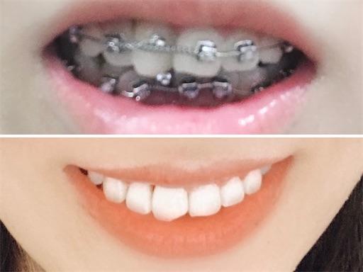 歯列矯正ビフォアアフター