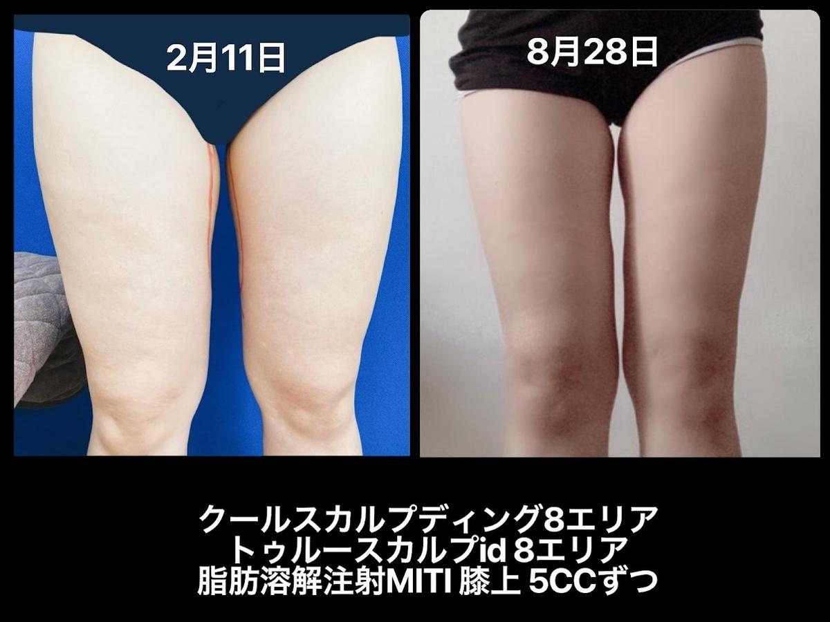 医療ダイエットの脚痩せの結果