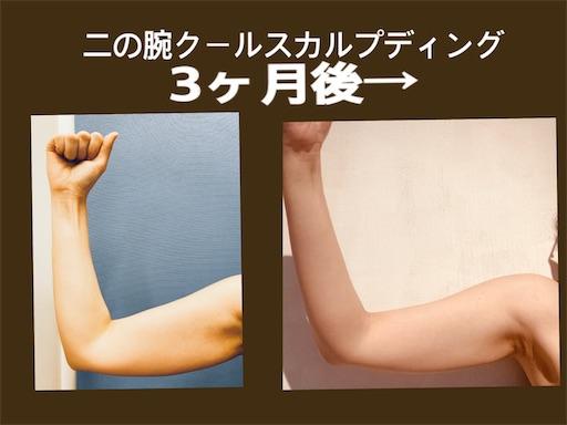 二の腕クールスカルプディング