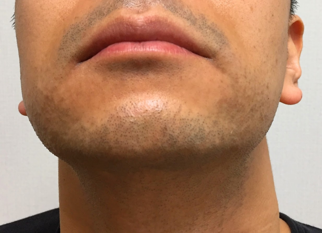 メディオスターのレーザー脱毛を受けた後の口周りのヒゲの状態。赤みや毛嚢炎は出ていません。