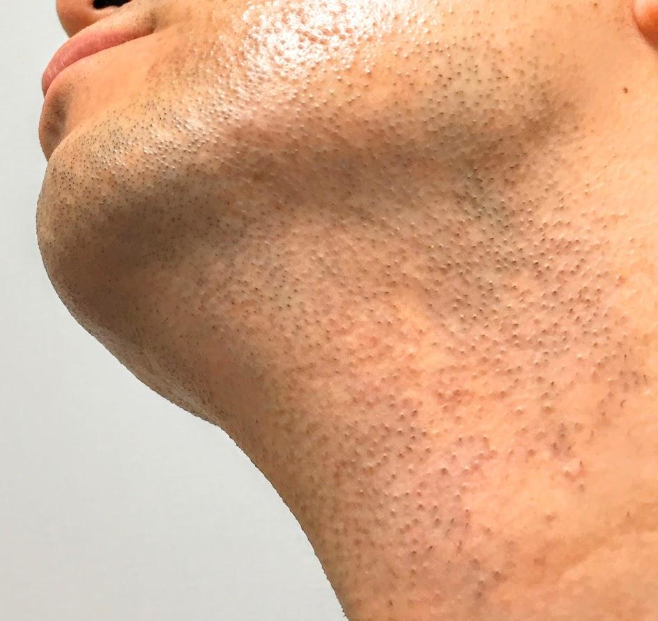 メディオスターのレーザー脱毛を受けた後のアゴのヒゲの状態。赤みや毛嚢炎は出ていません。