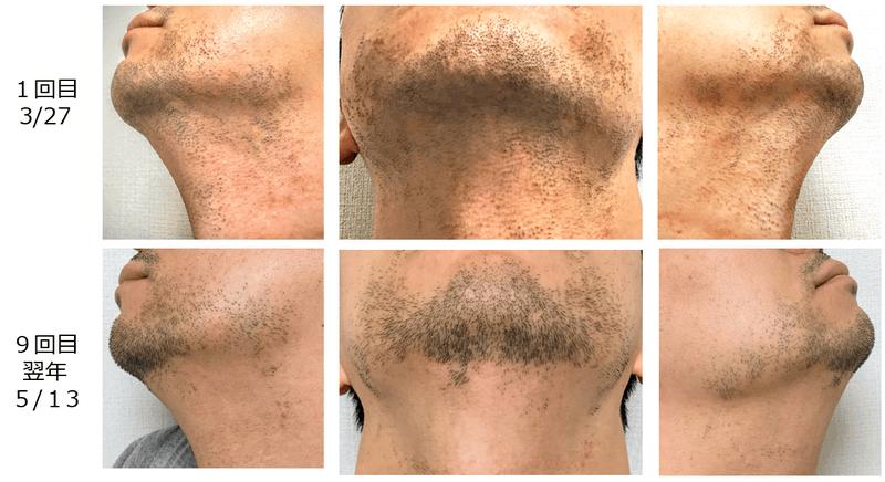 メディオスターヒゲ脱毛の1回目と9回目を比較した画像です。