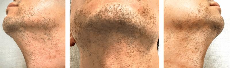 ヒゲ脱毛前のヒゲ状態