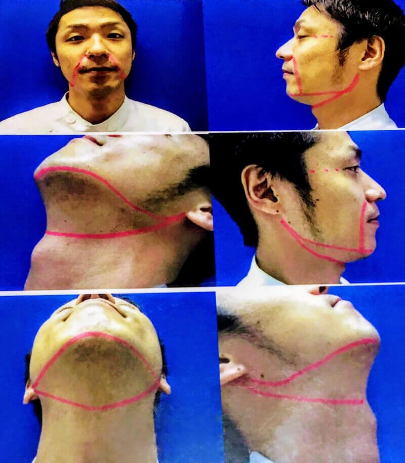 髭3部位、頬、首の脱毛範囲を示した写真