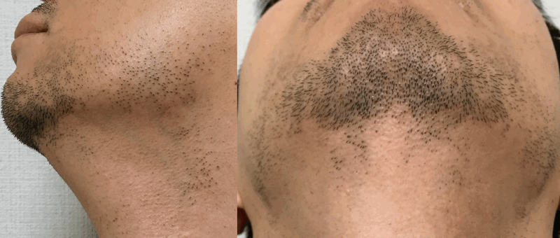 メディオスターの髭脱毛9回目の写真