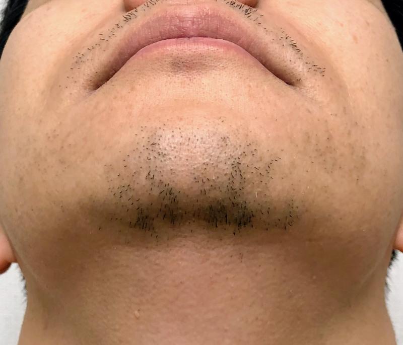 19回目の髭脱毛から2週間後の写真