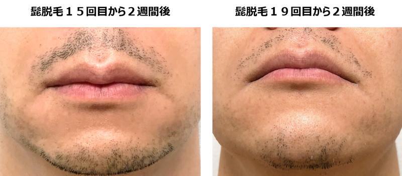 15回目と19回目の脱毛を比較した写真