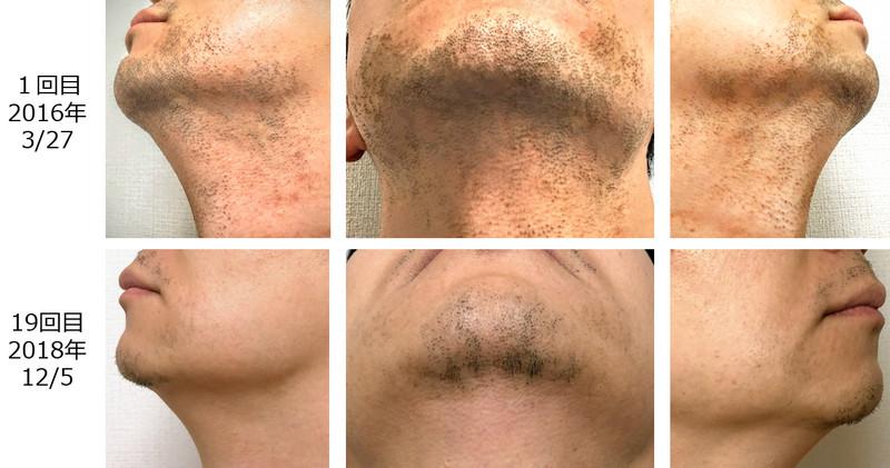 ヒゲ脱毛の1回目と19回目を比較した写真