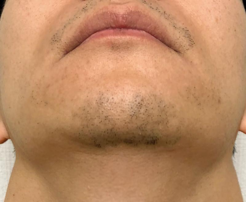 ヒゲ脱毛から2週間後の鼻下とあごのヒゲ3部位の状態