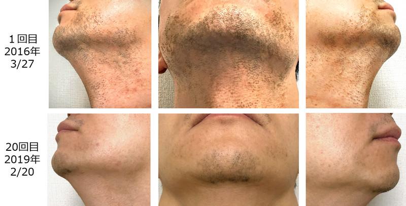 1回目と20回目の髭の脱毛状態の比較