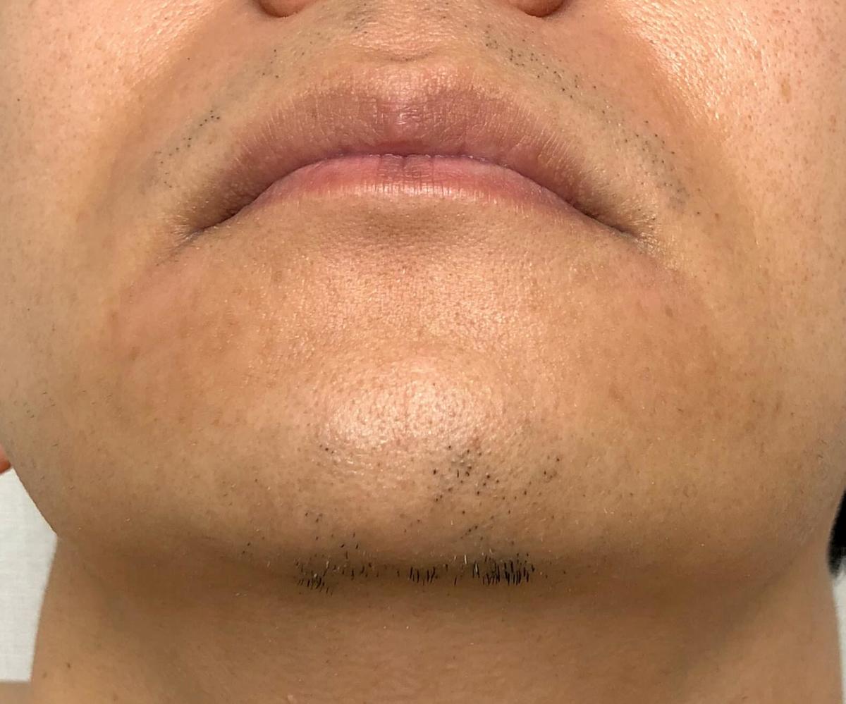 21回目のヒゲ脱毛から2週間後のヒゲ3部位