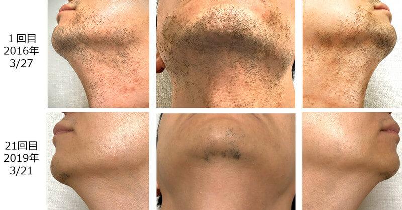 1回目と21回目の髭の脱毛状態の比較