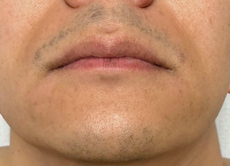 ヒゲを剃ってから15時間経過した写真