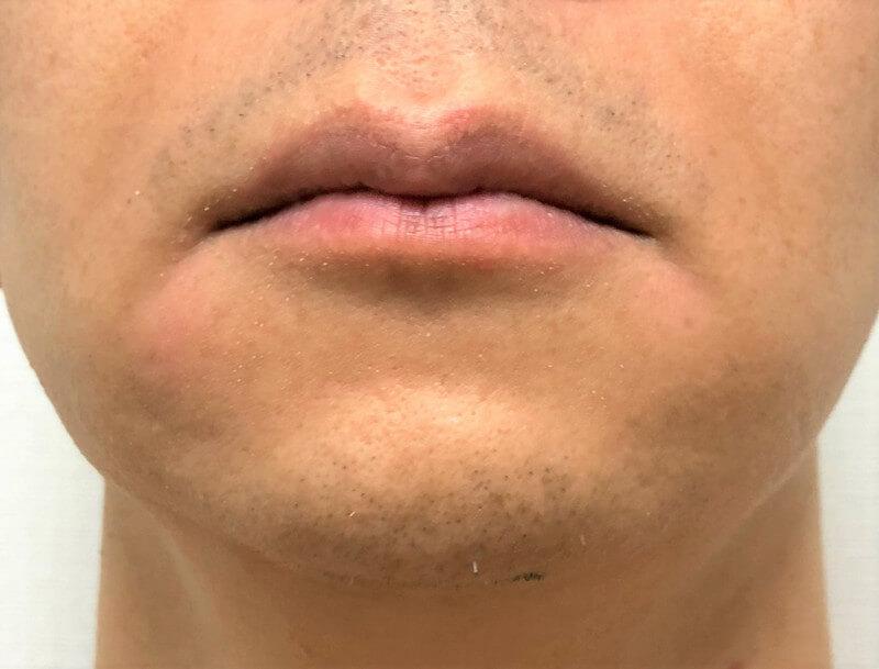 22回目のレーザー脱毛から2週間経過したヒゲ3部位
