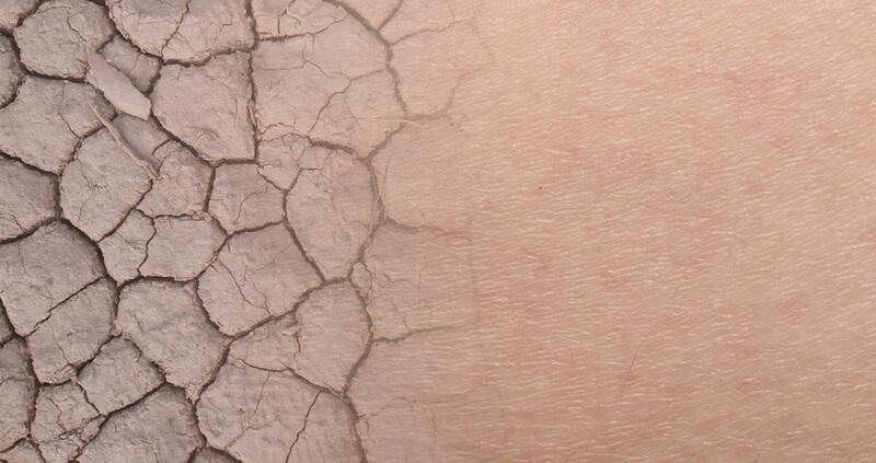 乾燥によって皮膚が硬くなり、毛が出てこれなくなります。