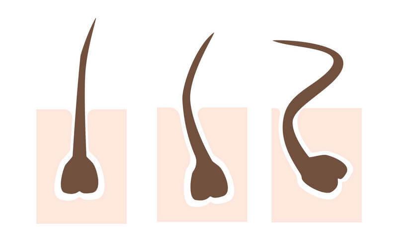 毛穴がまっすぐ伸びていないと、毛が曲がることで埋没してしまう。