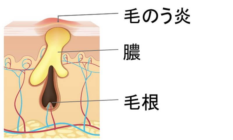 毛嚢炎(もうのうえん)は、毛穴に細菌が入り、炎症している状態。