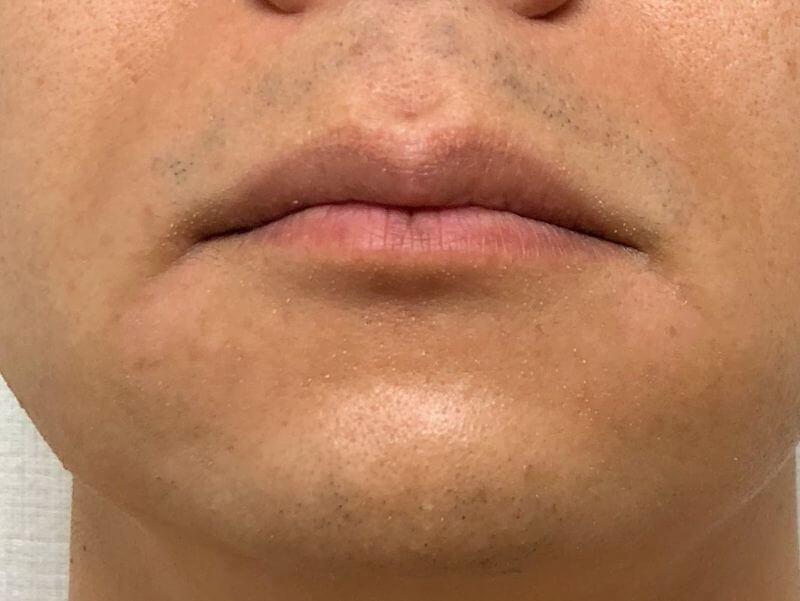 前日にヒゲを剃ってから12時間経過