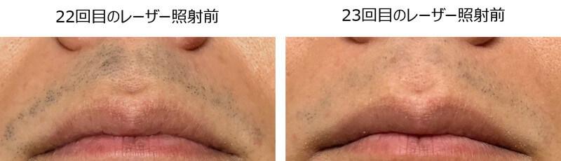22回目と23回目の鼻下の青髭感