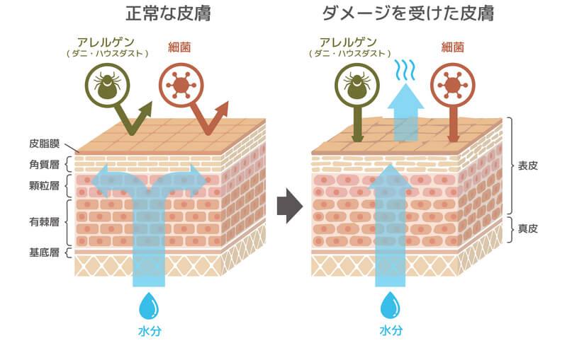 ダメージを受けた肌は、バリア機能が低下し、雑菌が入りやすくなります。