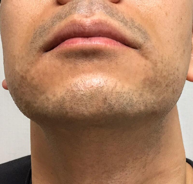 髭脱毛前のあごひげ