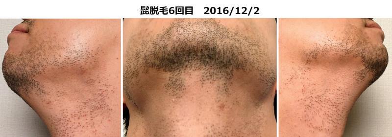 髭脱毛6回目のヒゲの状態