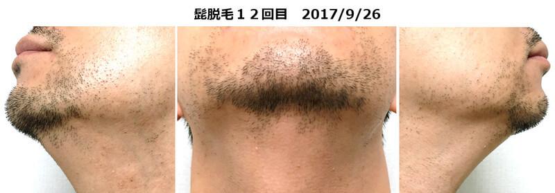 髭脱毛12回目のヒゲの状態。首のヒゲがなくなる。