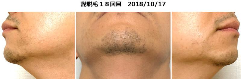 髭脱毛18回目の状態