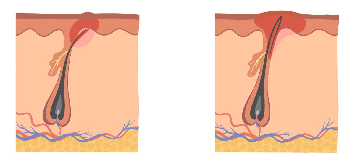 2種類の埋没毛パターン