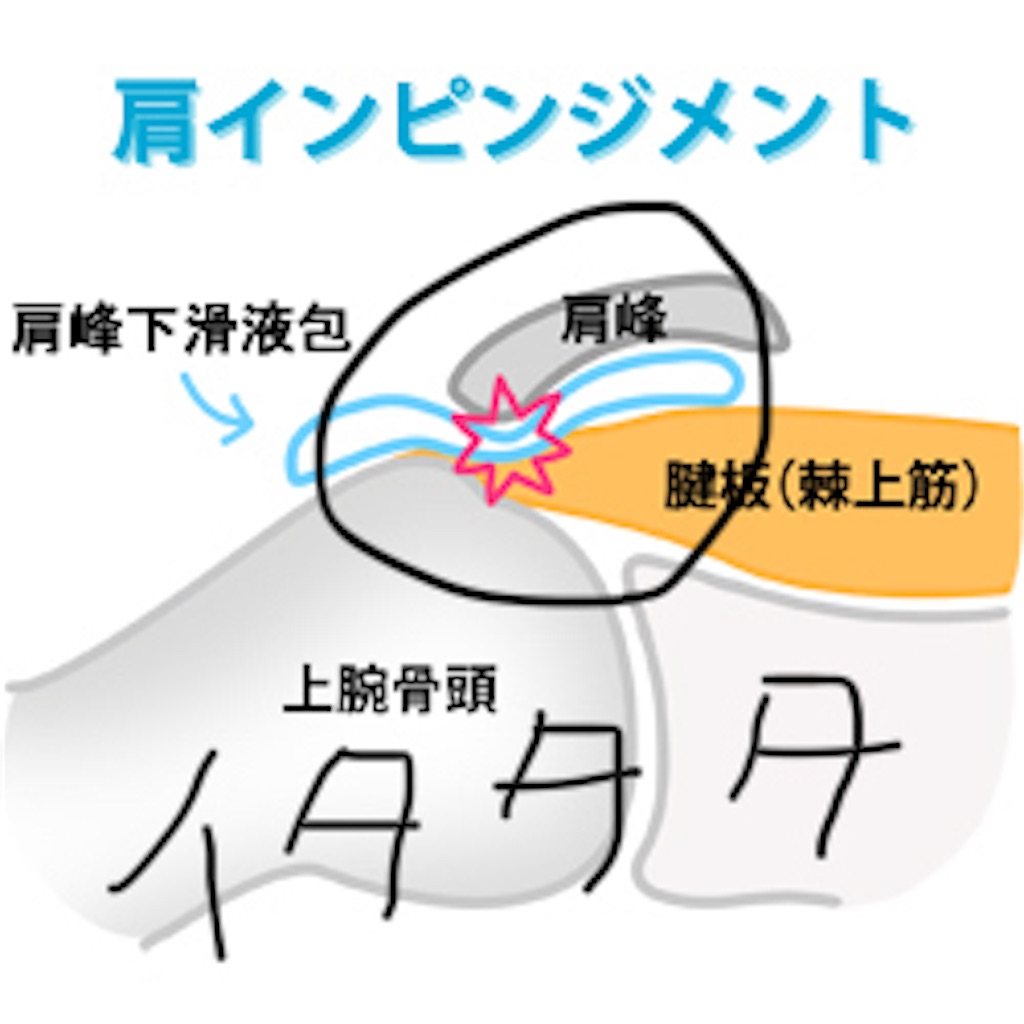 f:id:hoyuforyou:20181012230717j:image