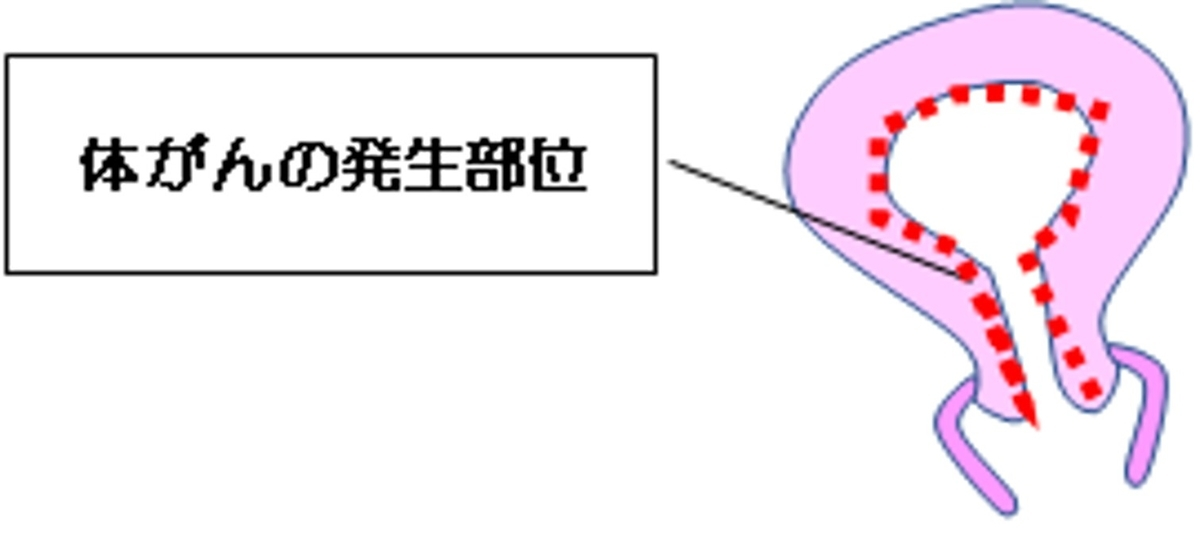 f:id:hutawa-ohana:20190706125559j:plain