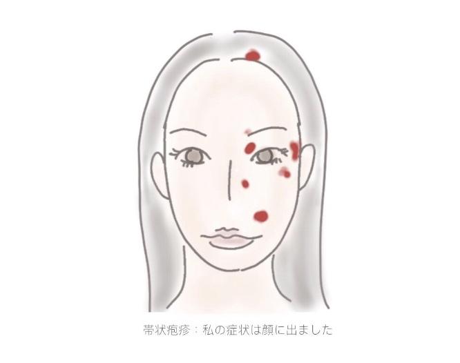 f:id:ichi-manmaru:20180601154322j:plain